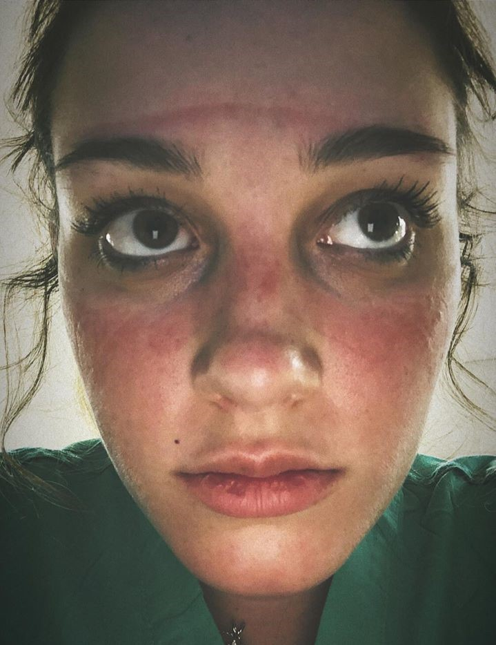 Closeup of woman's face with marks from wearing personal protective equipment